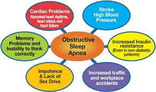 Sleep Airway Solutions Offers Alternative Treatment for Sleep Apnea